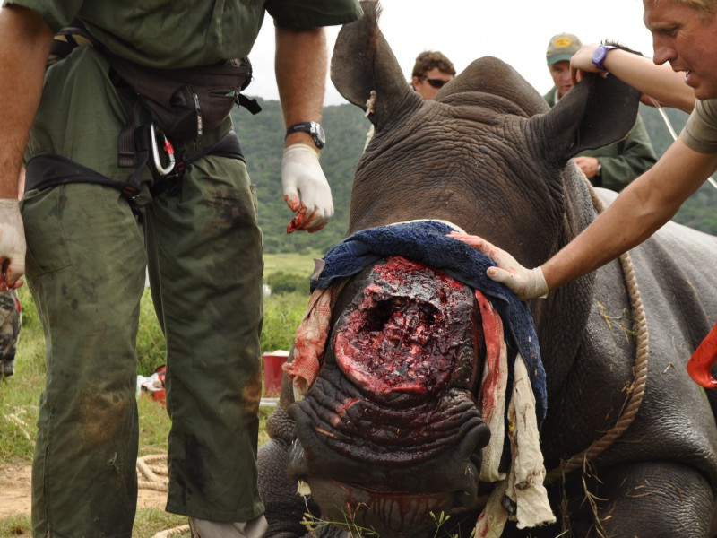 Thandi undergoing a procedure to heal her face